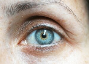 eye exercises for astigmatism - eye exercise